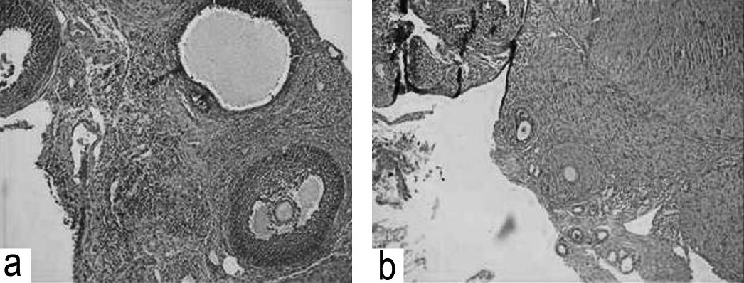 Figure 2 :(a) Section of rat ovary in control group showing mature graafian follicle and developing follicles. (b) Section of rat ovary in group II showing primordial and primary developing follicles.