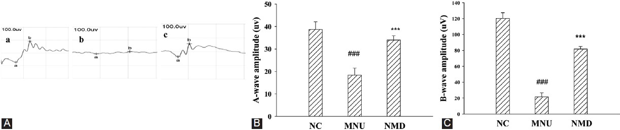 Figure 2: Effects of NMD on MNU-induced retinal ERG. (A) Representative ERG recording from an eye of (a) NC group, (b) MNU group and (c) NMD group. (B) a-wave amplitudes of NC group, MNU group and NMD groups. (C) b-wave amplitudes of NC group, MNU group and NMD groups. In rats received NMD treatment, both amplitudes significantly increased more than those of rats in the MNU group. Data are expressed as mean ± standard error (<i>n</i> = 6), ***<i>P</i> < 0.001 versus NC group, ***<i>P</i> < 0.001 versus MNU group