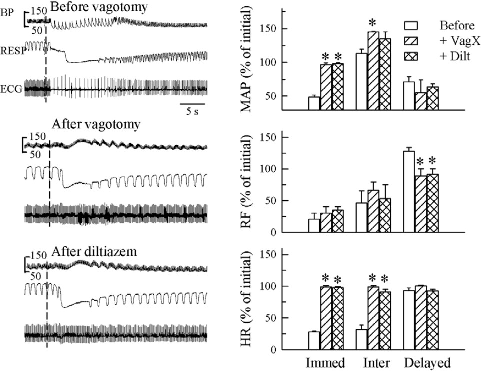 Figure 5: The original tracings of BP, respiration (Resp), and ECG before, after vagotomy and after diltiazem in vagotomized animals are presented on the left. Vertical dashed line indicates the point of capsaicin administration. Horizontal line (time scale) = 5 s for all. The mean ± SEM values (<i>n</i> = 3) of MAP, RF, and HR at immediate (Immed), intermediate (Inter), and delayed phases are presented in the bar diagrams. Before indicates before vagotomy; + VagX indicates after vagotomy; and + Dilt indicates diltiazem after vagotomy. *(<i>P</i> < 0.05, One-way ANOVA followed by Student-Newman-Keuls test)