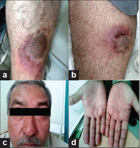 Figure 1: (a) Inflamed psoriatic plaques; (b) erosive psoriatic plaques; (c) facial erythema; (d) palmar erythema