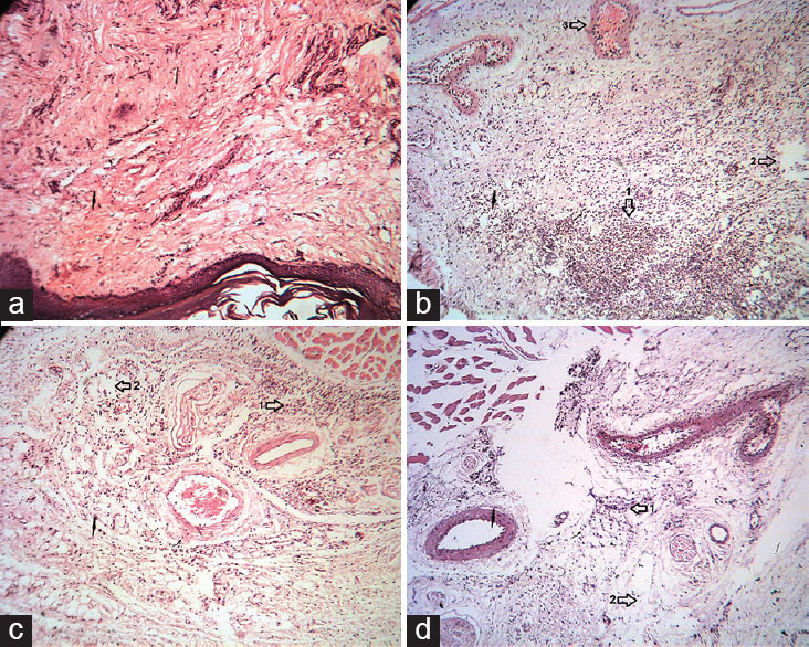 Figure 7: Histopathologic examination of paw tissue of rats treated with EA, 5 h after injection of carrageenan (Carr). (a) Normal rats show the normal appearance of epidermis and dermis without any lesion. (b) Carrageenan-injected paw tissue in control group. Vasodilatation with edema, and migration of neutrophil were observed. (c and d) Carrageenan-injected paw of rats treated with EA (30 mg/kg, intraperitoneal [i.p.]) and indomethacin (5 mg/kg, i.p.), respectively. The migration of neutrophil and edema reduced. Sections were stained with H and E, ×40. 1: Neutrophil, 2: Edema, 3: Vessel